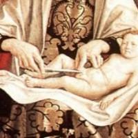 circuncisión fimosis