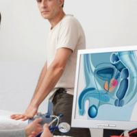 Estenosis de la uretra