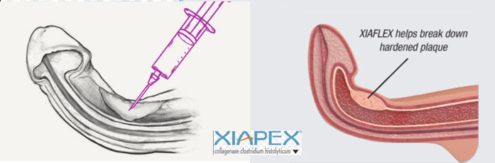Xiapex