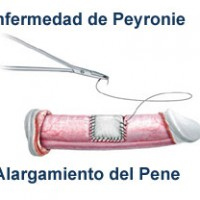Chirurgical procedures to lengthen the penis in patients with curved penis