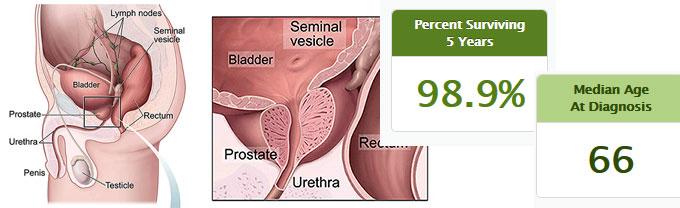 Datos sobre cáncer próstata
