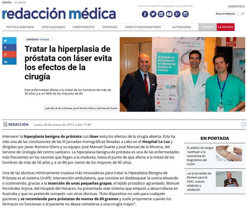 Redacción Médica: Hiperplasia con láser