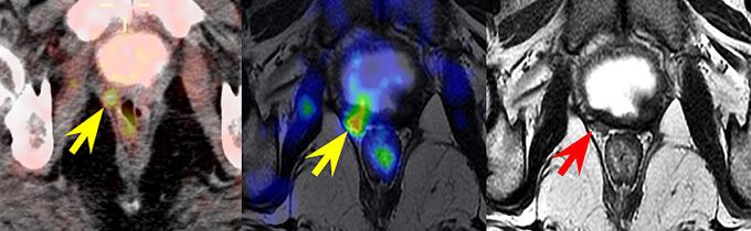 resonancia magnetica multiparametrica prostata valor