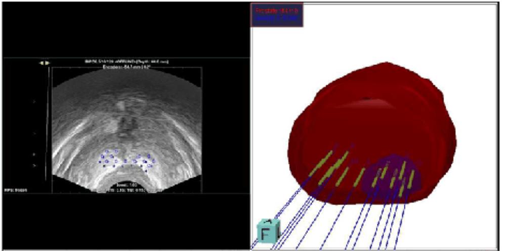 radiología del agrandamiento de la glándula prostática