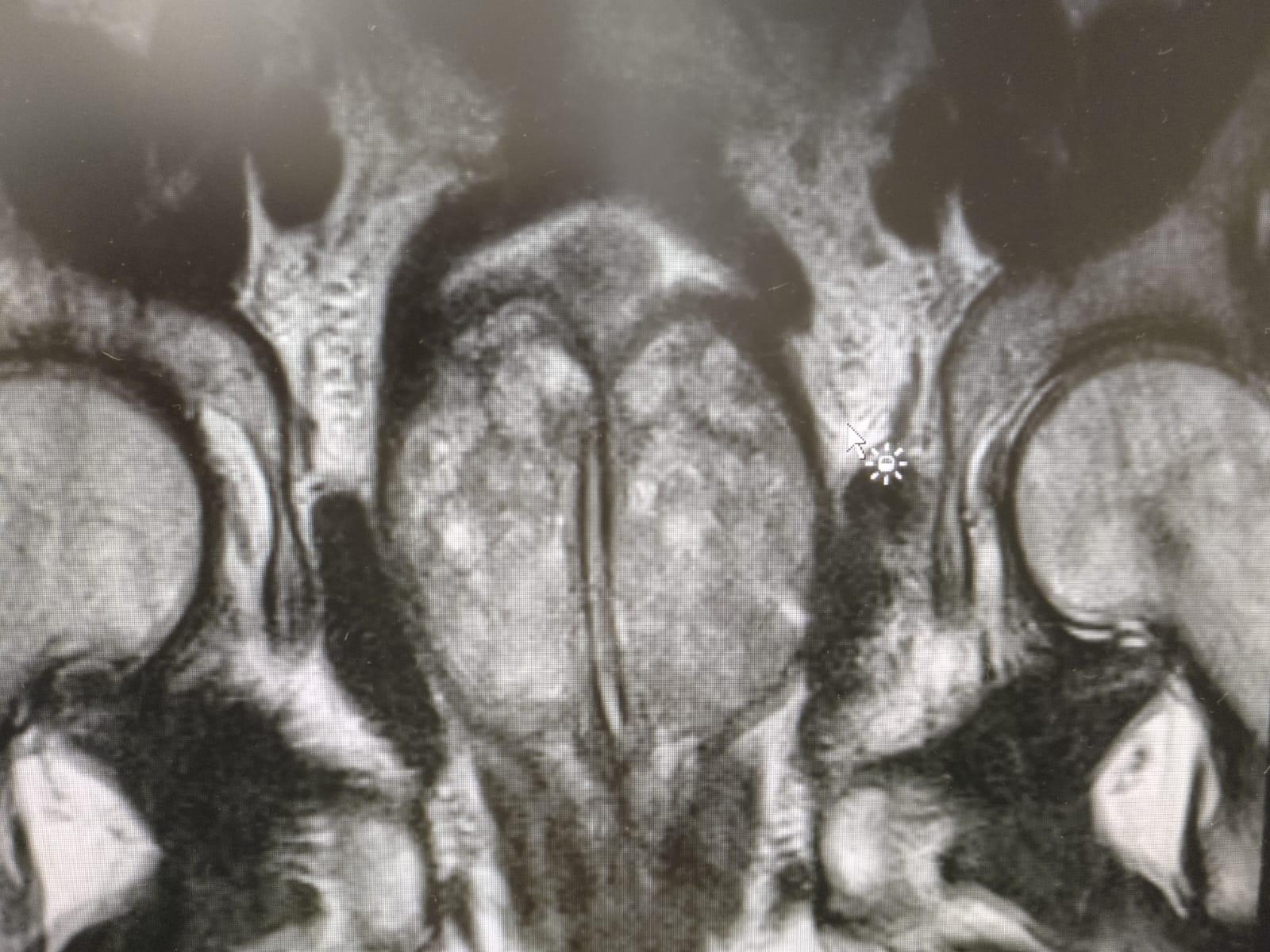 Andrología y Cirugía romero