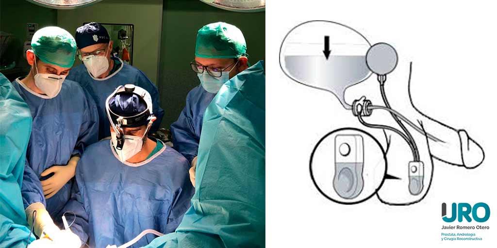Esfínter urinario cirugía reconstructiva