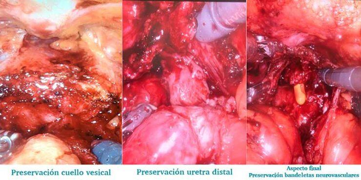 Cirugía robótica cáncer próstata